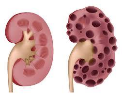 Νεφρικές Κύστεις